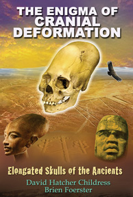 The Enigma of Cranial Deformation EBOOK